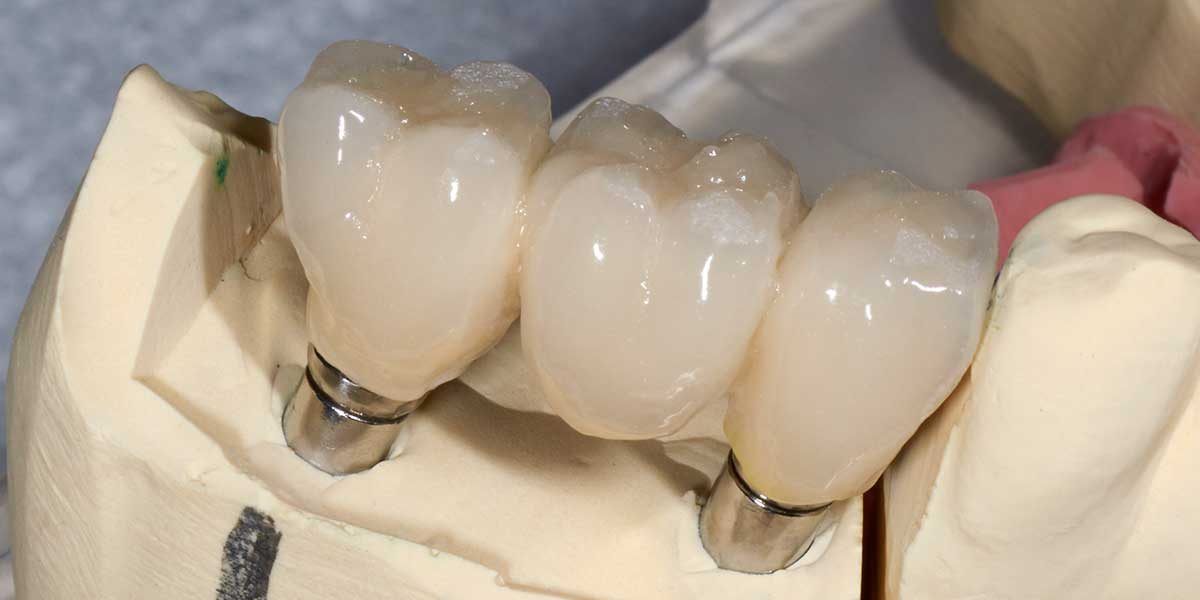 Dental Implant Supported Bridges in Montgomery