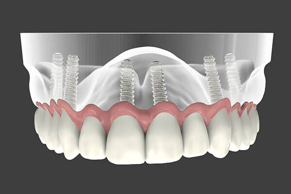 Implant Supported Dentures in Montgomery