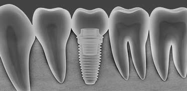 Dental Implants in Montgomery