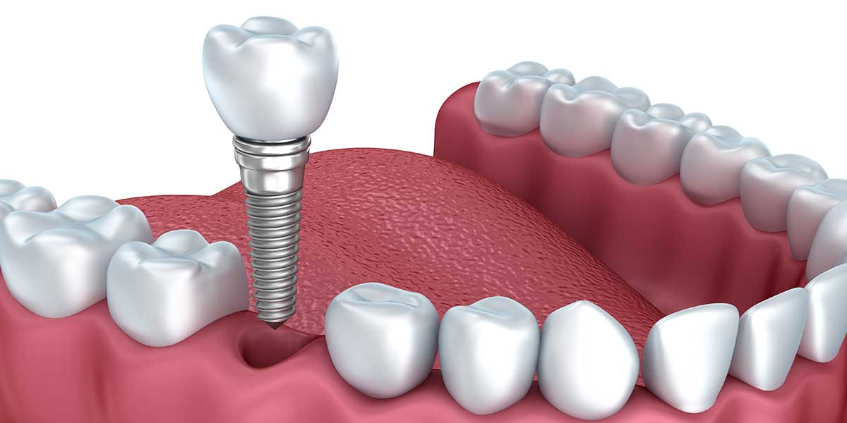 Single Dental Implants in Montgomery