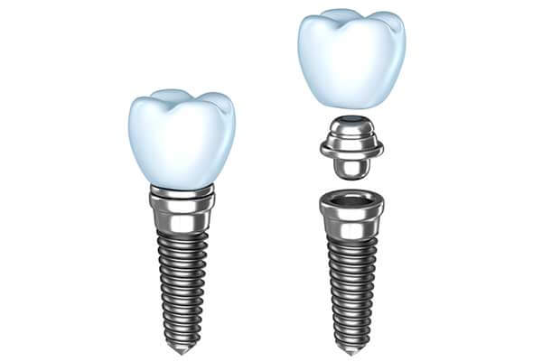 Single Tooth Dental Implants in Montgomery